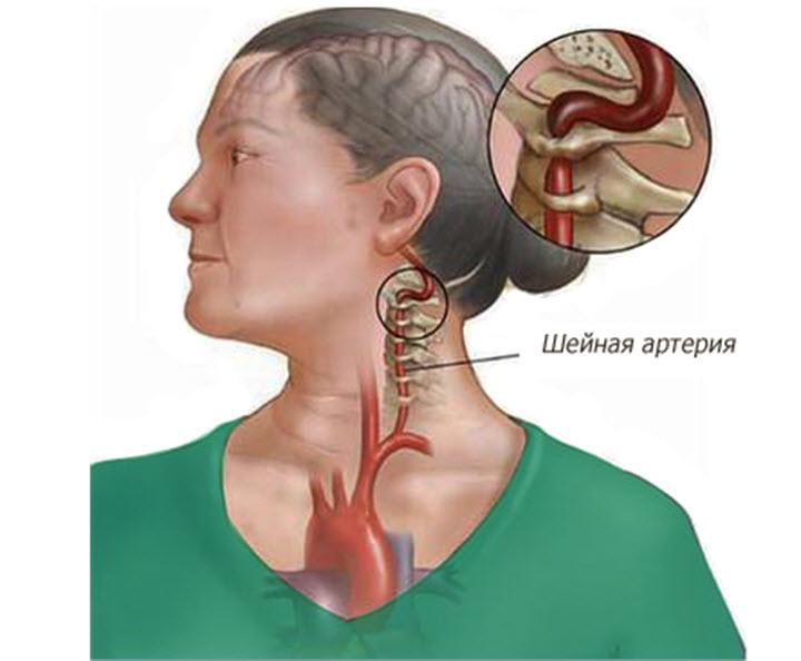 С чем связаны боли в шее