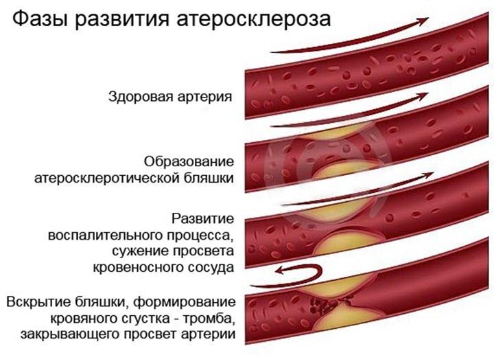 Атеросклероз сосудов сердца что делать