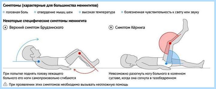 Диагностика менингита у детей в домашних условиях