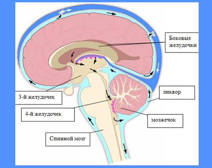 Внутричерепное давление на глаза как лечить