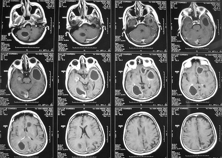 Диагностика головного мозга