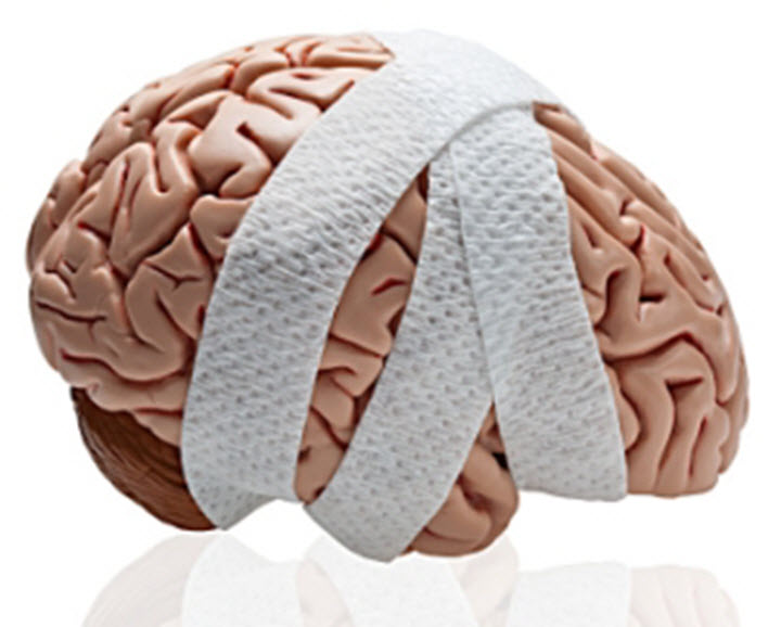 Тошнота при черепно-мозговой травме