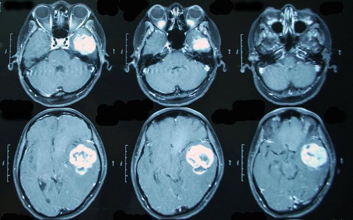 Опухоль мозга на МРТ