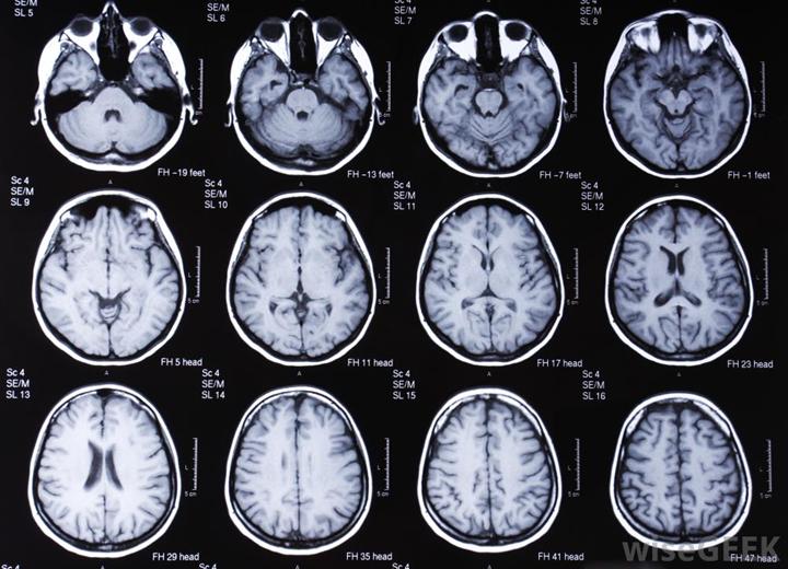 МРТ мозга при диагностике менингита