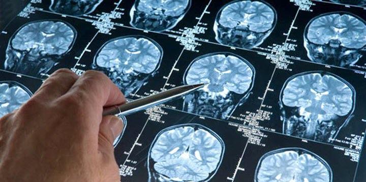 МРТ головного мозга