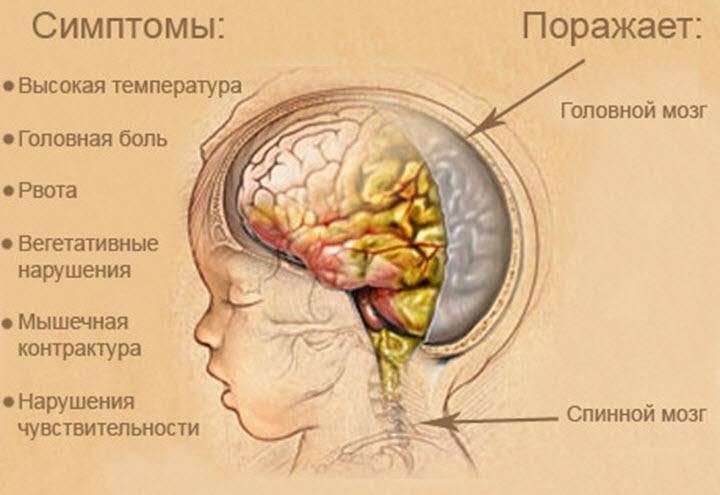 Заболевание менингит