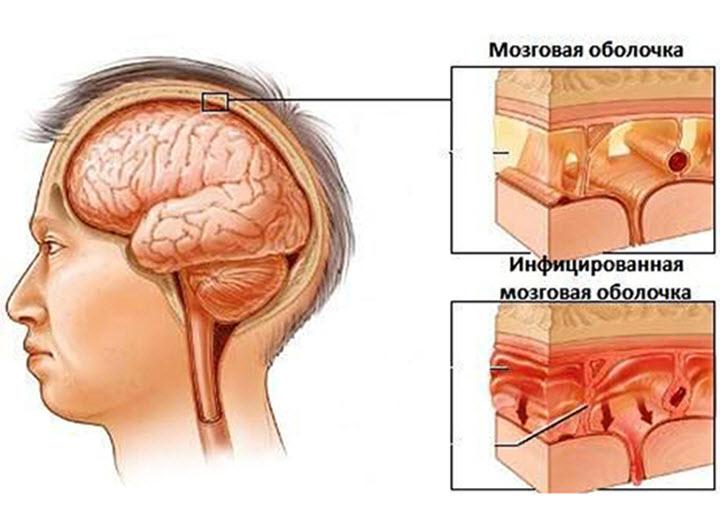 Воспаление мозговых оболочек при менингите