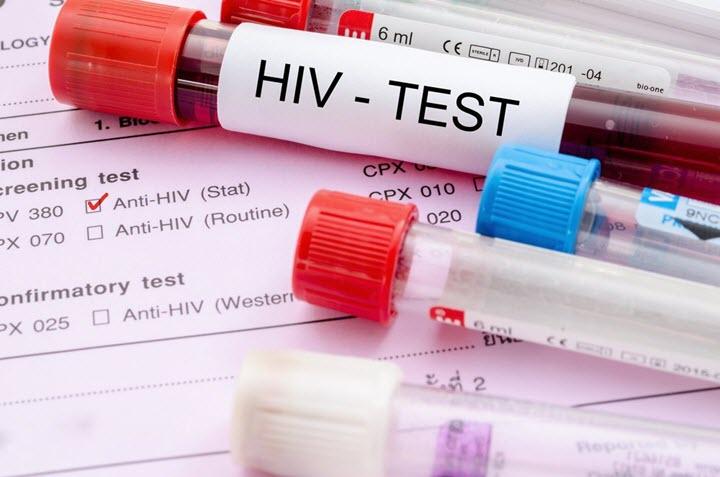СПИД может стать причиной заболевания
