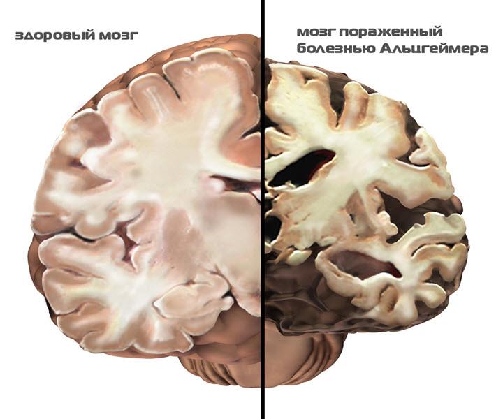 Мозг пораженный болезнью Альцгеймера