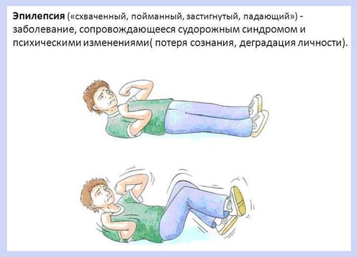 Проявления эпилептического припадка