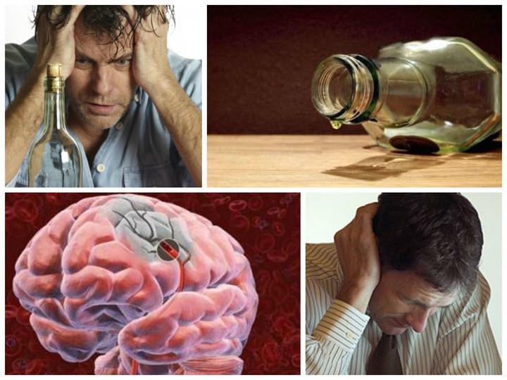 Алкогольные поражения мозга