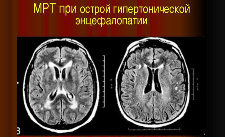 Цереброваскулярная энцефалопатия