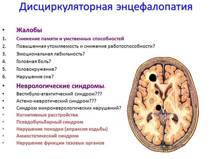 Признаки дисциркулярной энцефалопатии