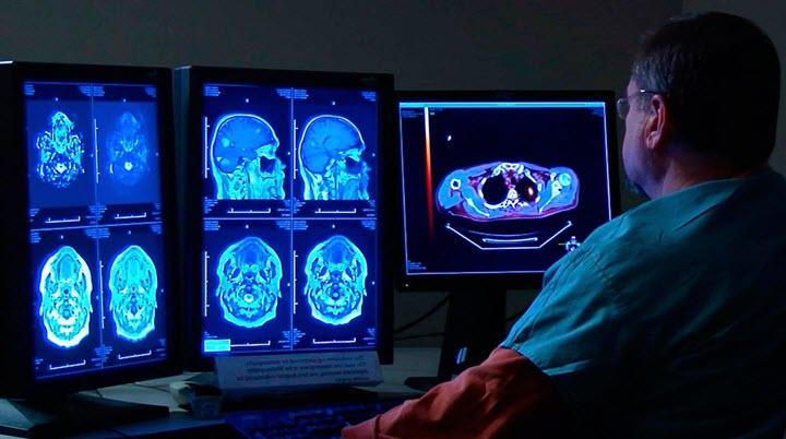 Полное обследование головного мозга