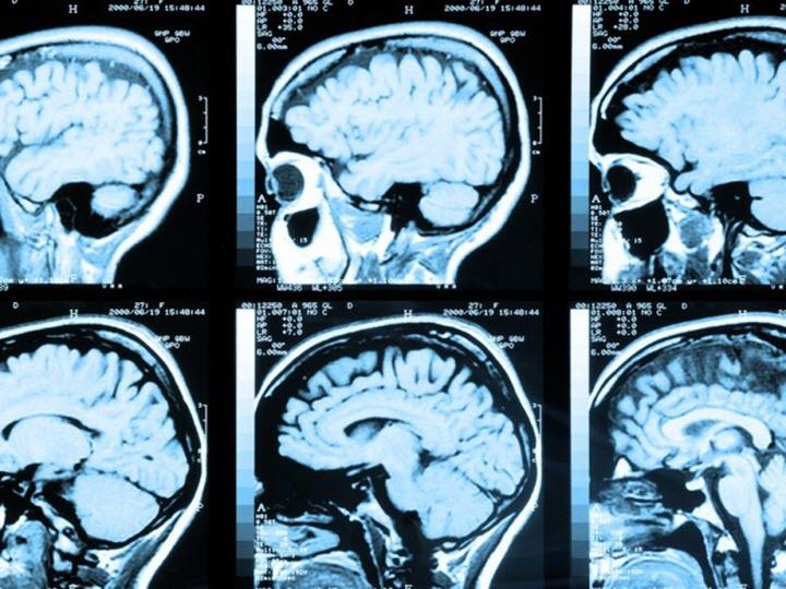 Диагностика водянки мозга
