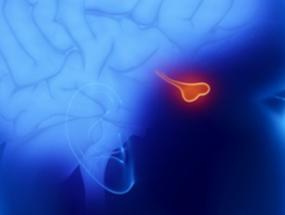 Киста шишковидной железы