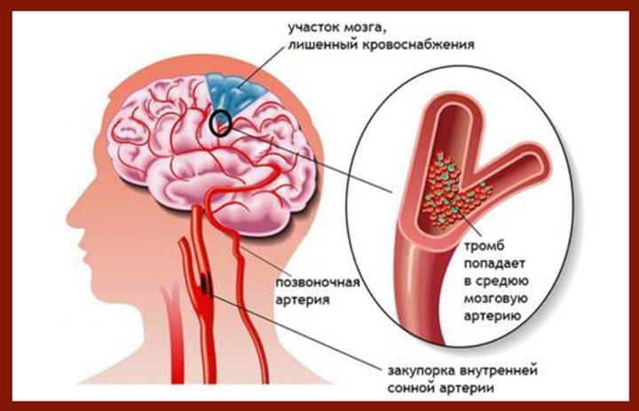 Высокий холестерин признаки симптомы
