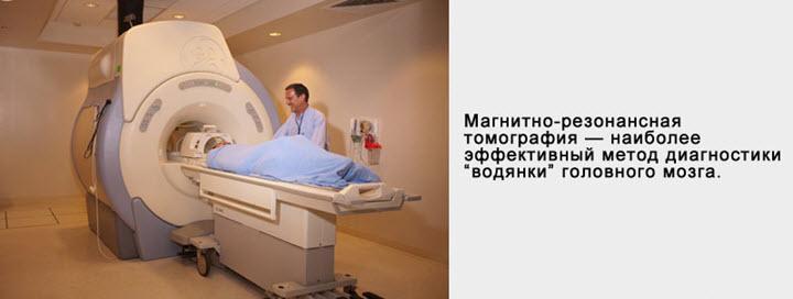 МРТ для выявления водянки головного мозга