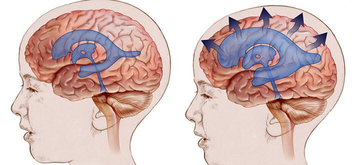 Водянка мозга