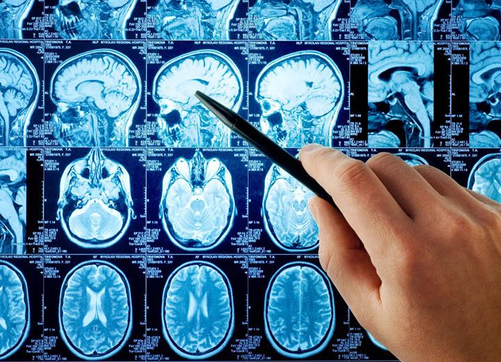 Исследования кисты головного мозга