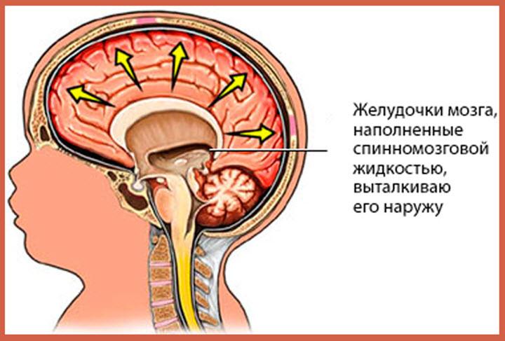 Что происходит при водянке мозга