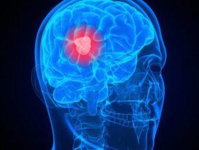 Опухоль лобной доли мозга