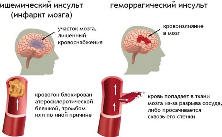 Ишемический и геморрагический инсульты