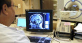 Симптомы опухоли мозга у детей