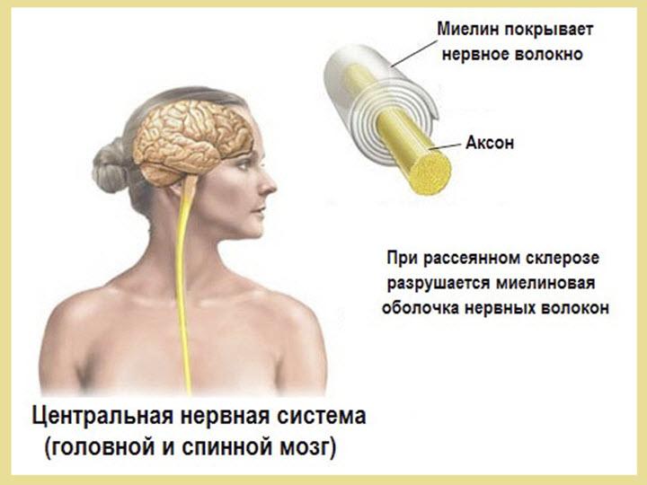 Рассеянный склероз симптомы развития