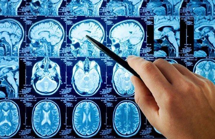Снимок головного мозга
