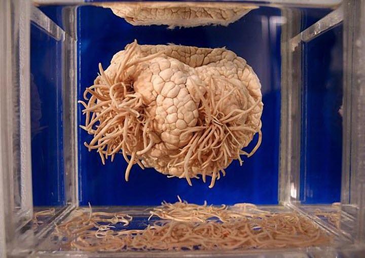Мозговой гельминтоз