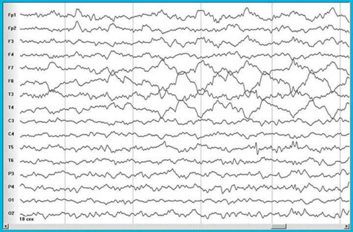 Показатели ЭЭГ мозга