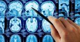 МРТ исследование мозга