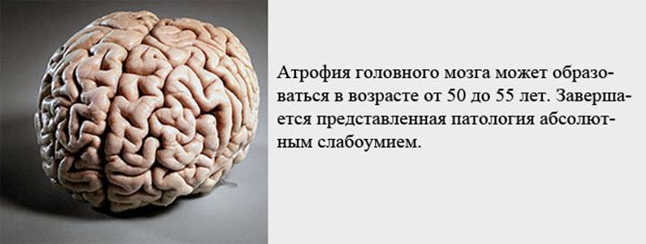 Возрастная атрофия мозга