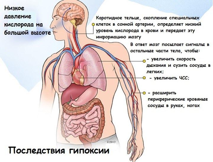 Последствия гипоксии