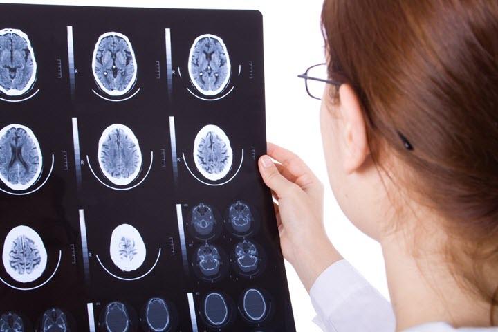 МРТ исследование головного мозга