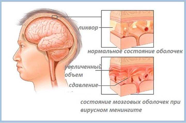 Состояние оболочек при менингите