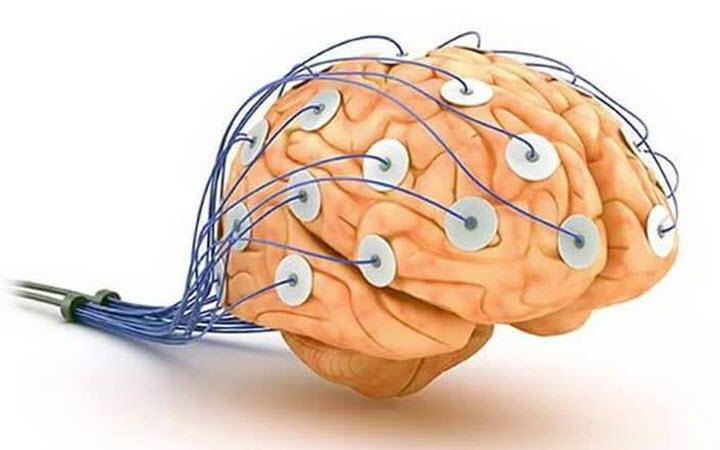 Сделать МРТ головного мозга в Москве  цена от 3100р