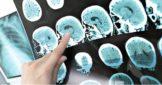 Снимок коры головного мозга