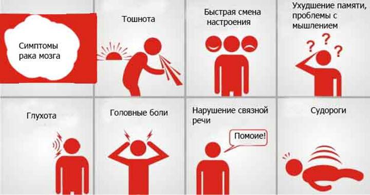 Симптомы мозговой опухоли
