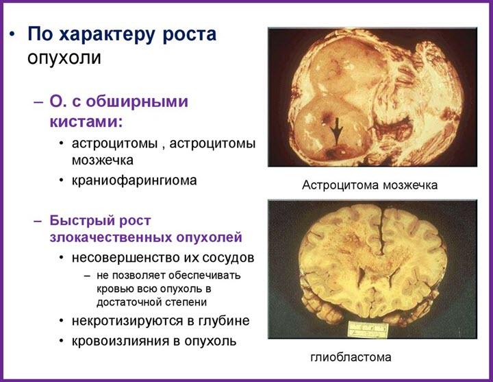 Виды опухолей мозга