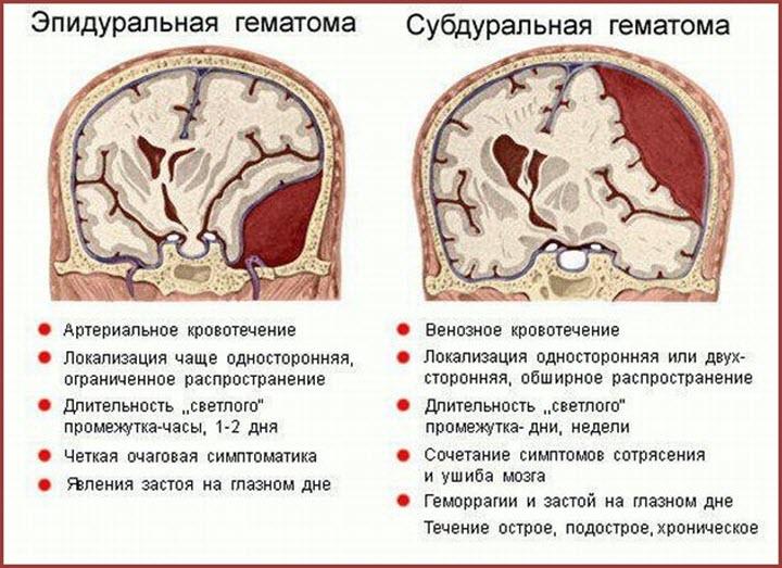 Виды гематом ГМ