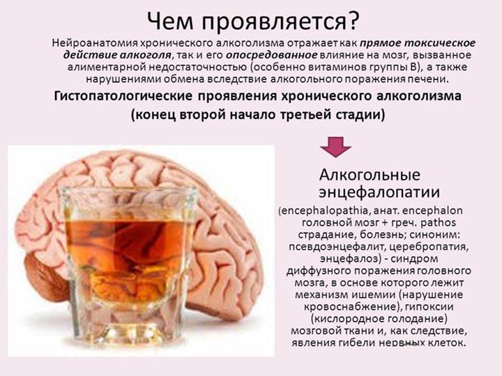 Препараты при энцефалопатии головного мозга
